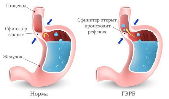 Болит желудок вверху посередине: что делать, симптомы, причины